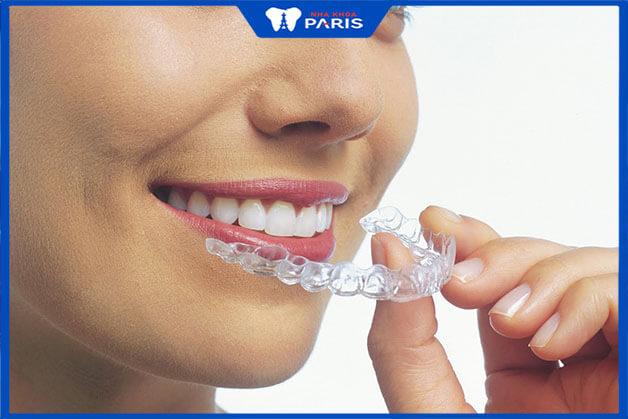 Hiệu quả mà niềng răng Clear Align đem lại
