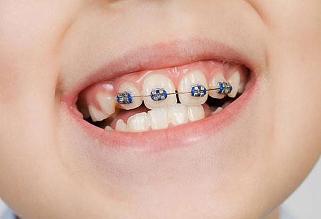 Phương pháp niềng 2 răng cửa thưa có hiệu quả cao