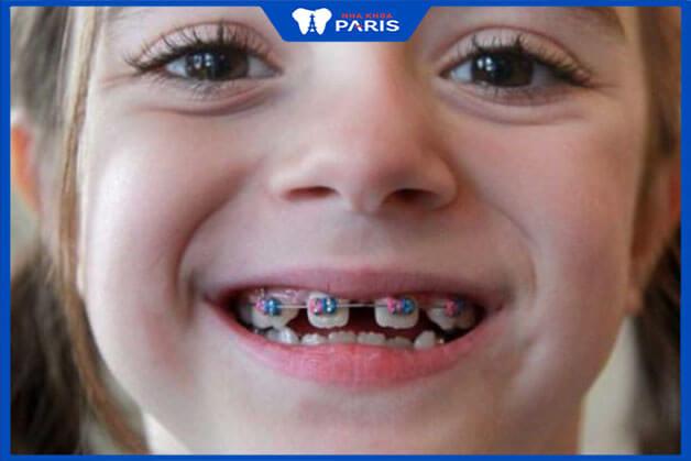 Hiệu quả của phương pháp niềng răng thưa