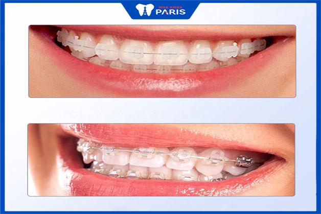 niềng răng mắc cài sứ hoặc kim loại hiệu quả hơn