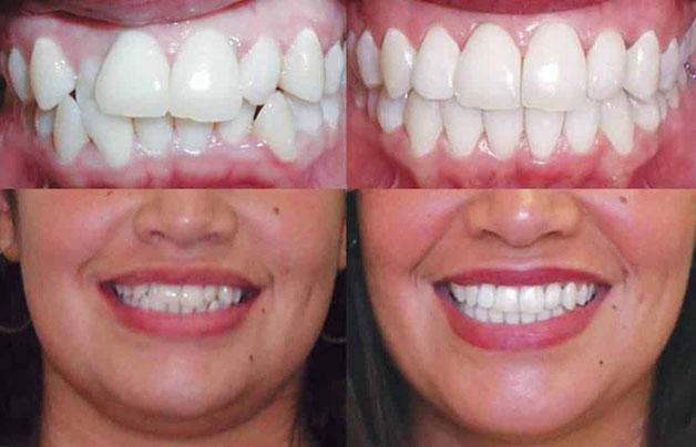 niềng răng tàng hình đạt hiệu quả cao