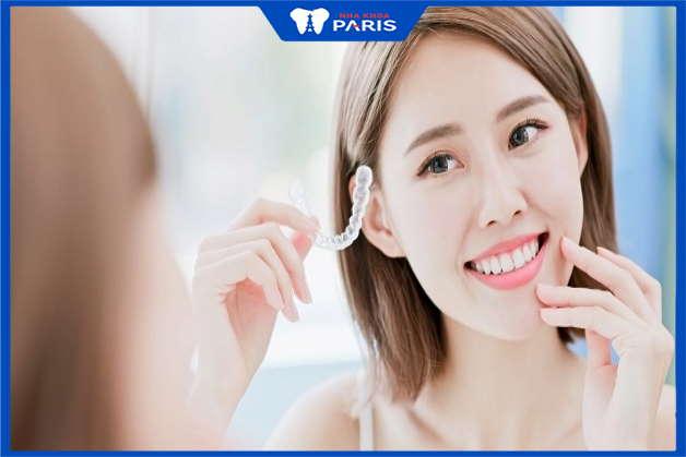 lợi ích của niềng răng tàng hình