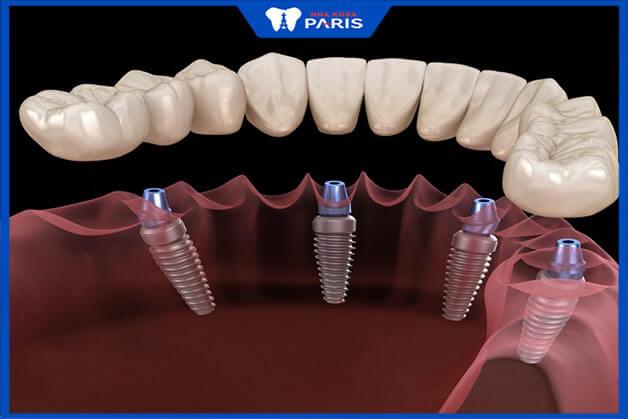 Cấy ghép răng Implant All on 4 phù hợp với cả trường hợp mất toàn răng