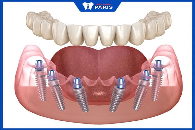 trồng răng nguyên hàm all on 6