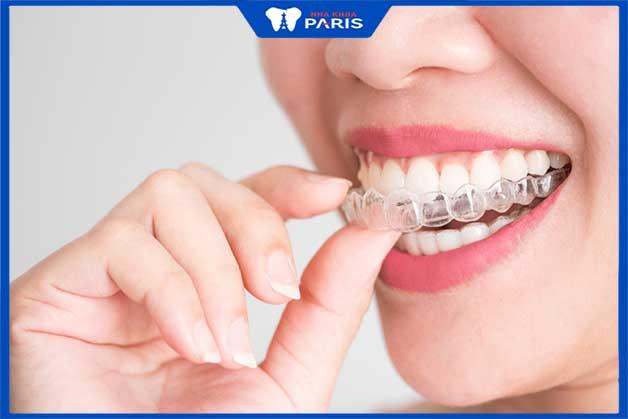 Bước cuối quan trọng trong quá trình niềng răng sứ thẩm mỹ