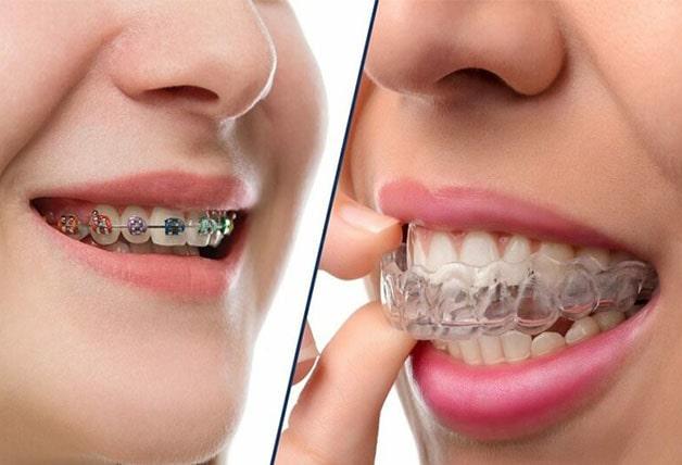 Các loại niềng răng thông dụng