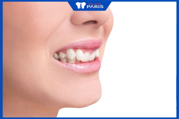 Khớp cắn sâu cần thực hiện niềng răng để đảm bảo thẩm mỹ