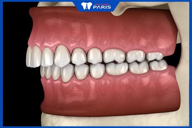 Khớp cắn sâu gây mất cân bằng hàm răng