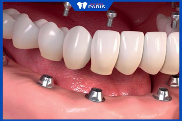 Kỹ thuật trồng răng Implant All on 6