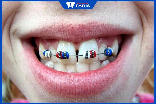 phương pháp niềng 2 răng cửa