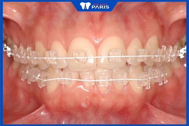 Kỹ thuật niềng răng mắc cài trong suốt