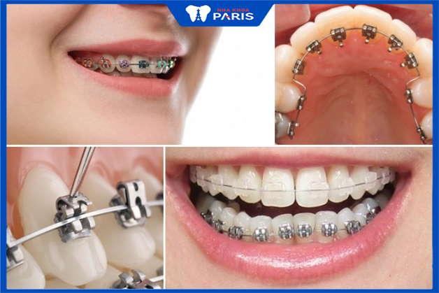 các phương pháp niềng răng phổ biến hiện nay