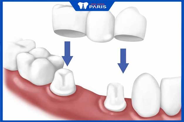 Làm cầu răng sứ phương pháp được nhiều người tin dùng
