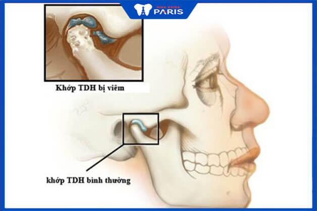 Răng hàm bị mất có thể gây ra loạn khớp cắn thái dương