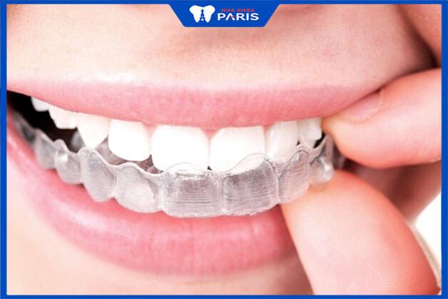 Lợi ích mà niềng răng trong suốt mang lại
