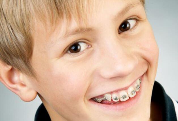 Niềng răng sớm cho trẻ có thể khắc phục các tình trạng răng hô lệch khớp cắn