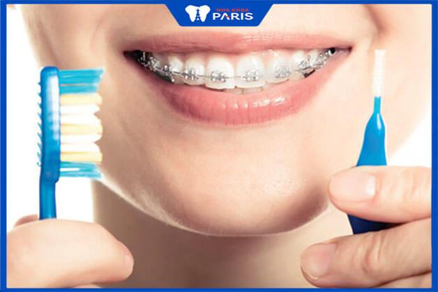 Sau khi niềng răng bạn cần vệ sinh răng miệng sạch sẽ hàng ngày