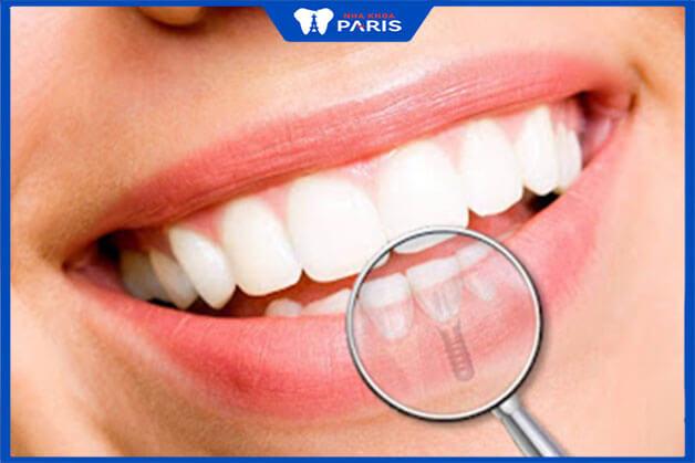 Bảo tồn răng thật liền kề được khỏe mạnh là lý do mà nhiều người lựa chọn implant