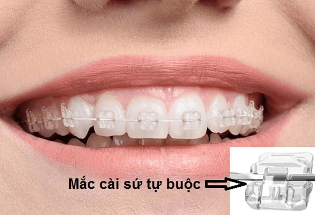 Phương pháp niềng răng mắc cài tự động