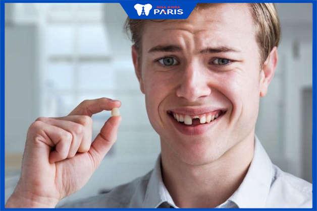 tác hại của mất răng tới diện mạo