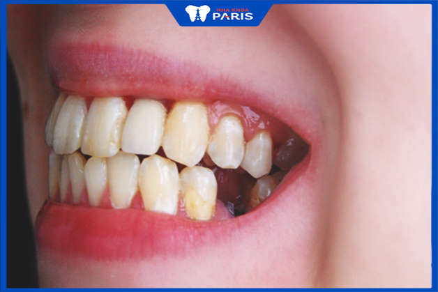 mất răng lâu ngày ảnh hưởng tới răng khác