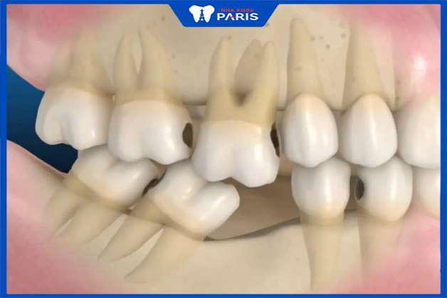 nguyên nhân mất răng nhiều ngày