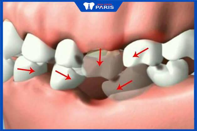 Mất răng số 6 để lâu ảnh hưởng tới chức năng ăn nhai