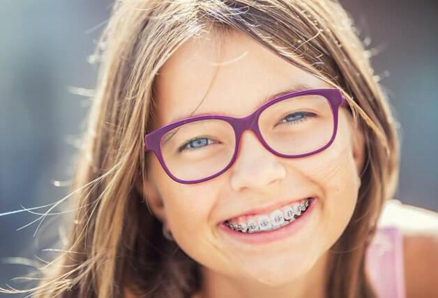 Niềng răng răng sớm cho trẻ là cần thiết