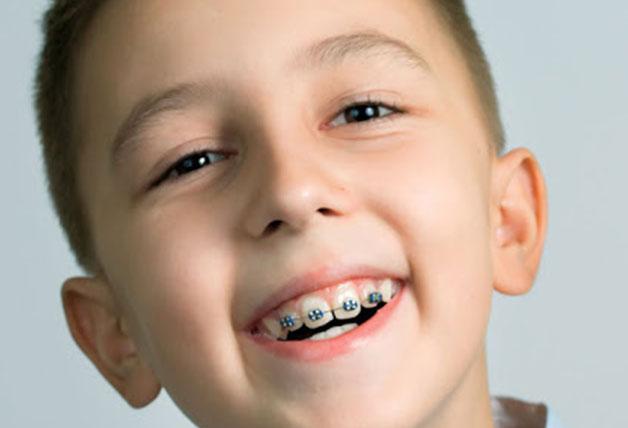 Niềng răng từ sớm sẽ đạt hiệu quả cao