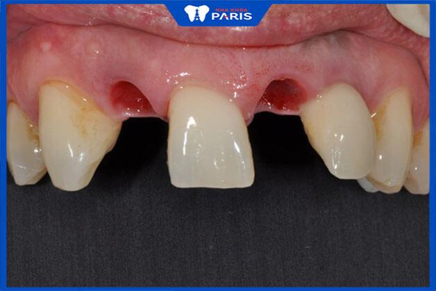 Tiêu xương răng chủ yếu sẩy ra khi bị mất răng