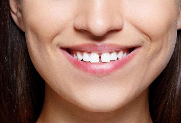 Các nguyên nhân khiến cho răng cửa mọc thưa