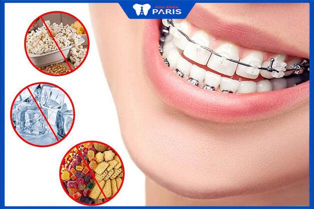 Các thực cần tránh sau khi niềng răng