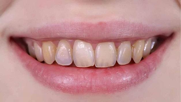 Nguy cơ mòn men răng khi niềng răng lúc mang thai