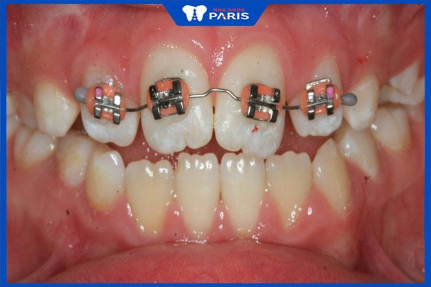 niềng 2 răng cửa có hiệu quả không