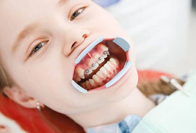 Niềng 4 răng cửa