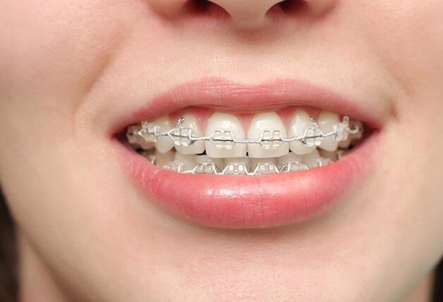 Phương pháp niềng răng giúp điều trị khớp cắn sâu hiệu quả