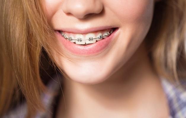 Giá niềng răng phụ thuộc vào kỹ thuật chính nha được áp dụng