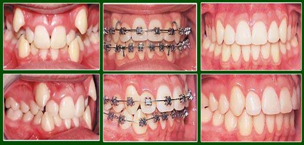 niềng răng cho đối tượng có răng hô vẩu