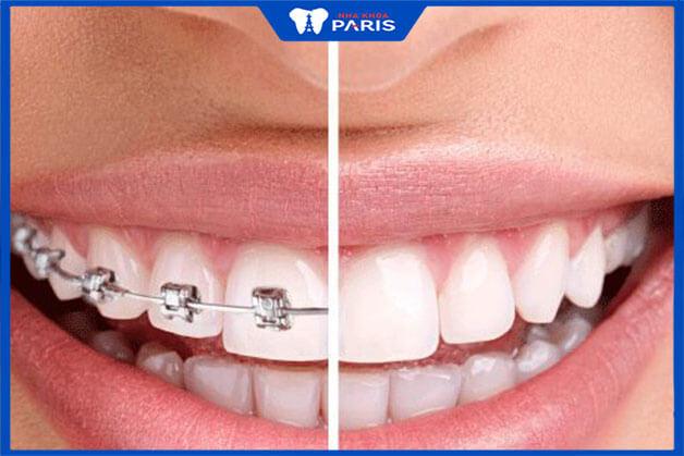 Niềng răng mang lại hiệu quả rất cao