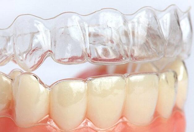 Phải đeo niềng răng không mắc cài ít nhất 20 tiếng mỗi ngày