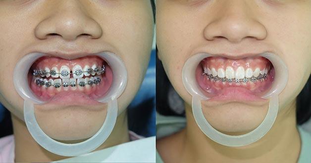 tìm hiểu niềng răng mắc cài kim loại