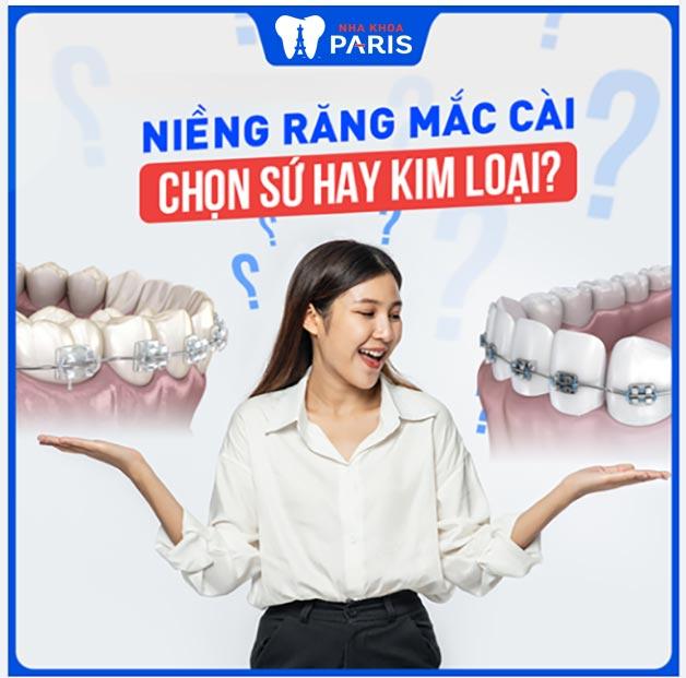 Chọn loại niềng răng mắc cài sứ hay kim loại