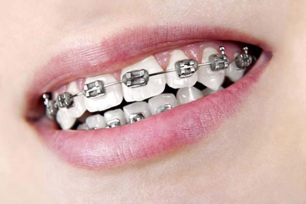 chi phí niềng răng mắc cài kim loại bao nhiêu