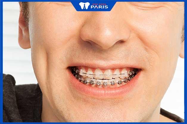 Niềng răng mắc cài sứ khắc biệt với niềng răng mắc cài kim loại