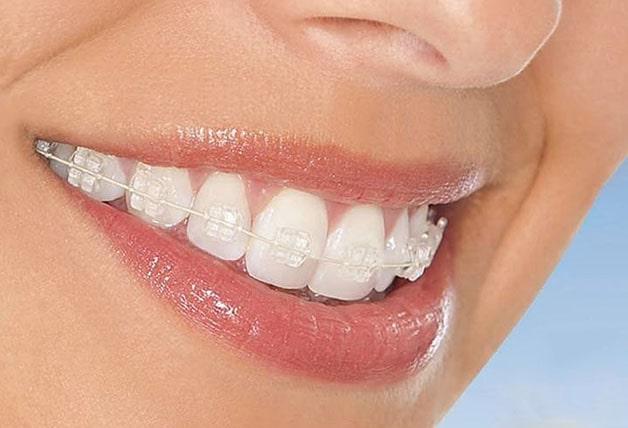 Phương pháp niềng răng mắc cài sứ