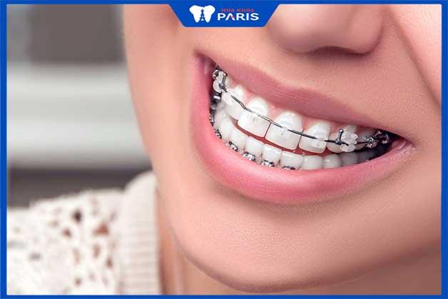Niềng răng móm tác dụng tốt nhất với trường hợp móm nhẹ