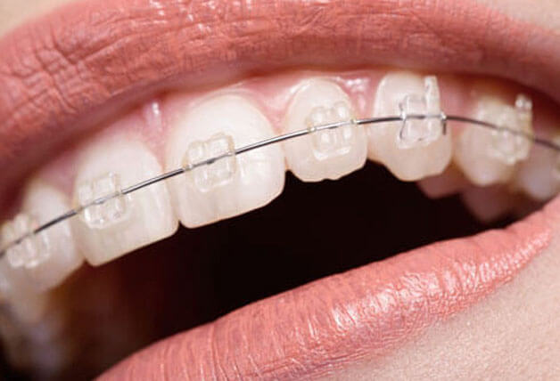 Hiệu quả niềng răng một hàm đem lại