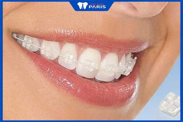 Niềng răng sứ thẩm mỹ phương pháp chỉnh nha hiệu quả