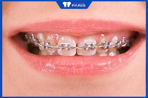 Niềng răng thưa bằng phương pháp niềng răng mắc cài