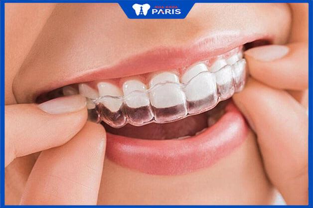 Niềng răng thưa bằng phương pháp niềng răng trong suốt